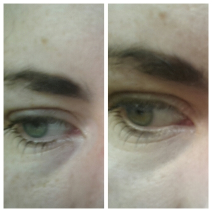 Before and after Vichy Dermablend Stick