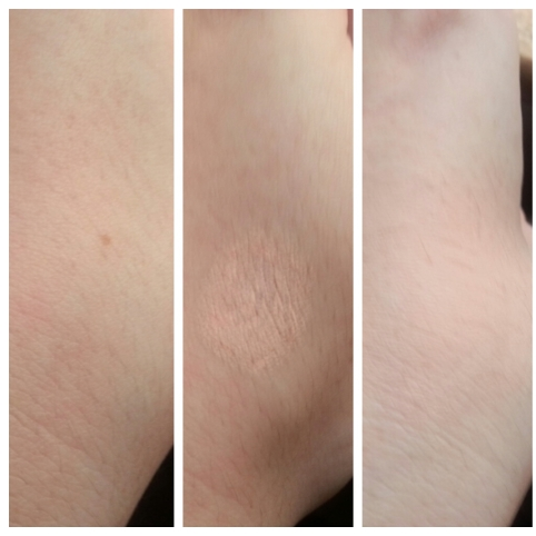 Vichy Dermablend Before and After