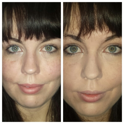 Vichy Dermablend Compact before and after